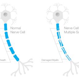 Multiple Sclerosis Nerves